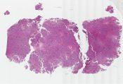 Chondroblastoma (Bone) [584/2]