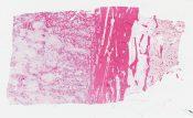Osteosarcoma (Bone) [584/21]