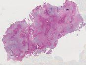 Chondromyxoid fibroma (Tibia) [584/3]