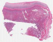 Giant cell tumor (Tibia) [584/6]