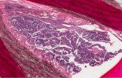 Adenocarcinoma (Lung) [59/4]