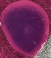 Leukemia (Lymphnodes) [6/1]
