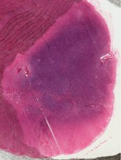 Hodgkin's disease (Lymphnodes) [6/14]