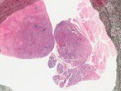 Histiocytosis X (Lymphnodes) [6/19]