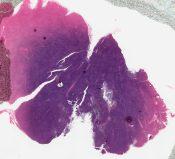 Leukemia (Lymphnodes) [6/2]