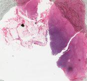 Leukemia (Lymphnodes) [6/3]