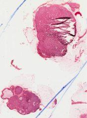Apocrine carcinoma (Breast) [62/10]