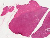 Leiomyosarcoma (Corpus) [62/3]