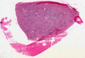 Warthin's tumor (Salivary glands) [62/7]