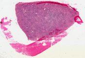 Warthin's tumor (Salivary glands) [62/7]