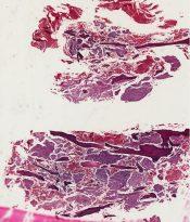 Malignant reticuloendotheliosis (Bone) [64/12]