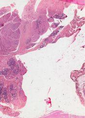 Oncocytoma          (Salivary glands) [66/14a]