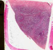 Mikulicz's disease          (Salivary glands) [66/15a]