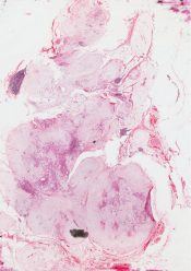 Benign mixed tumor (pleomorphic adenoma)          (Salivary glands) [66/17a]