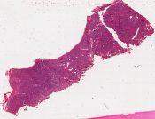 Adenoid cystic carcinoma          (Eye, lacrimal gland) [66/19a]