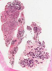 Benign mixed tumor (pleomorphic adenoma)          (Salivary glands) [66/19b]