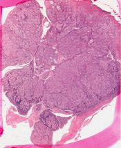 Clear cell carcinoma          (Lung) [66/20a]