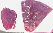Leukemia (Skin) [69/3]