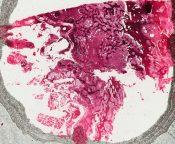Hyperparathyroidism (Bone, femur) [7/12]