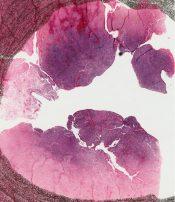 Pigmented villonodular synovitis (Bone, joint) [7/16]