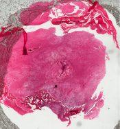 Ossifyng fibroma (Bone, mandible) [7/6]