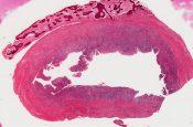 Radicular cyst (Mandible and maxilla) [78/20]