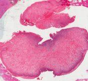 Pyogenic granuloma (Oral cavity) [78/22]