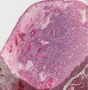 Cystosarcoma phylloides (Breast) [79/11]