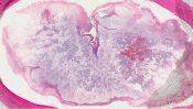 Pyogenic granuloma (Skin) [79/6]