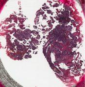 Adenocarcinoma (Vagina) [80/1]