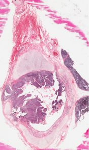 Epidermoid (squamous cell) carcinoma (Lung) [80/7]