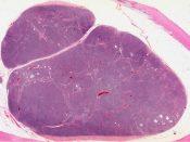 Hodgkin's disease (Lymphnodes) [81/1]