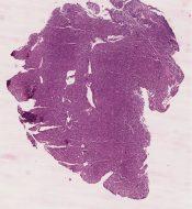 Plasma cell myeloma & plasmacytoma (Bone) [81/11]