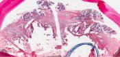 Adenocarcinoma (Salivary glands) [81/16]