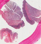 Paraganglioma (Small bowel ) [82/12]