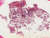 Glomus jugulare tumor (paraganglioma) (Ear) [82/6]