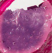 Hemangiopericytoma (Soft tissues) [87/17]