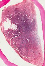 Fibroadenoma (Breast) [87/2]