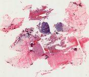 L. Johnsons' metaphyseal enchondromatous giant cell tumor (Bone) [88/14]