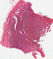 Malignant giant cell tumor (Bone, humerus) [88/15]