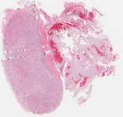 not provided (jrc: chordoma?) (CNS (clivus)) [890/2]