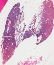 Adenoma (Parathyroid) [91/5]