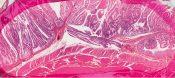 Villous adenoma (Large bowel) [92/14]