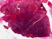 Hepatocellular carcinoma (liver cell carcinoma; hepatoma) (Liver) [92/16]