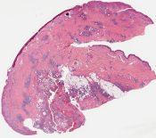 Cutaneous coccidiomycosis (Skin) [922/5]