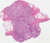 Epidermotropic metastatic squamous cell carcinoma with clear cell differentiation (Skin (neck)) [931/1]