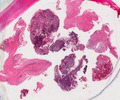 Medulloblastoma (CNS) [94/14]
