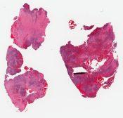 Histiocytosis X (bone) [958/19]