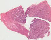 Carcinoid (Small bowel) [98/1]