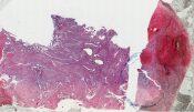 Choriocarcinoma (Placenta) [98/14]
